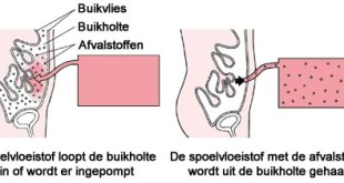peritoneaaldialyse