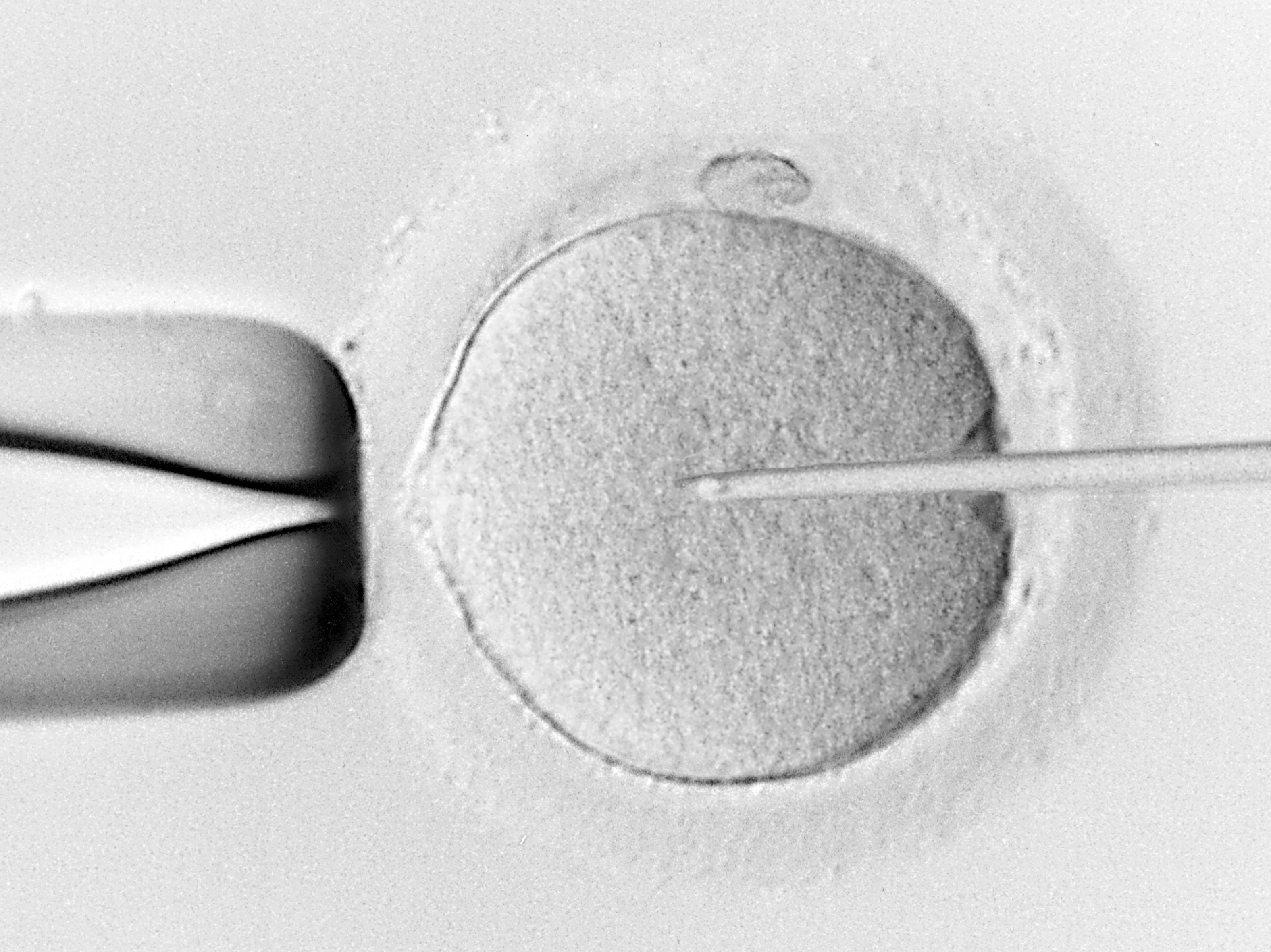 IVF - Eicel - Bevruchting
