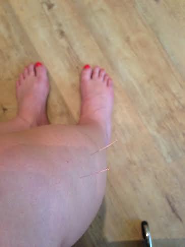 charlotte-acupunctuur